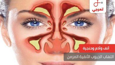 Photo of التهاب الجيوب الأنفية المزمن الأسباب الأعراض وطرق العلاج