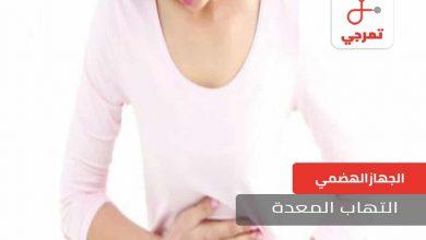 Photo of التهاب المعدة الأسباب الأعراض وطرق العلاج
