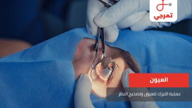 Photo of عملية الليزك للعيون وتصحيح النظر كل ما تريد معرفته
