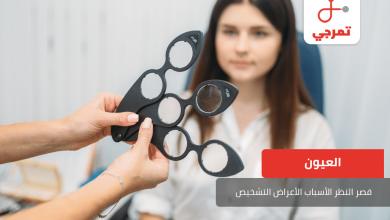Photo of قصر النظر الأسباب الأعراض التشخيص وطرق العلاج