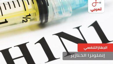 Photo of إنفلونزا الخنازير الأسباب الأعراض وهل يتم الشفاء منها