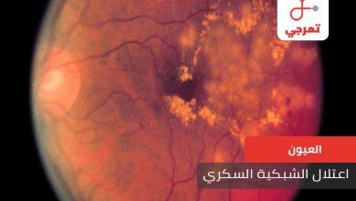 Photo of اعتلال الشبكية السكري الأسباب الأعراض وطرق العلاج