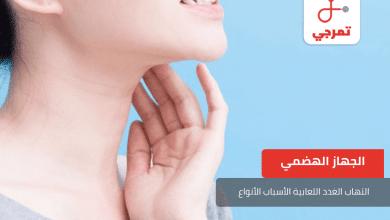 Photo of التهاب الغدد اللعابية الأسباب الأعراض وطرق العلاج
