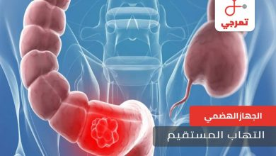 Photo of التهاب المستقيم الأسباب الأعراض وطرق العلاج