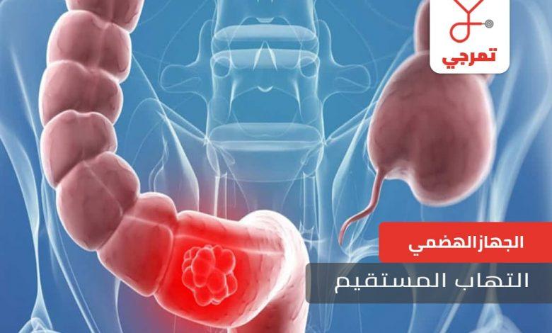 التهاب-المستقيم