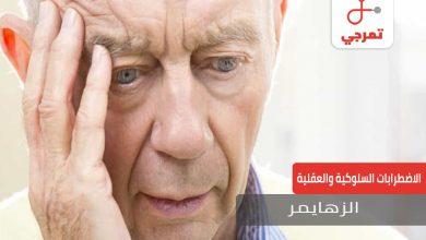 Photo of الزهايمر الأسباب الأعراض وهل يمكن علاجه
