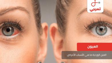 Photo of العين الوردية ما هي الأسباب الأعراض وطرق العلاج