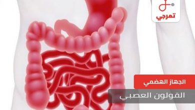 Photo of القولون العصبي الأسباب الأعراض وطرق العلاج