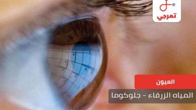 Photo of المياه الزرقاء – الجلوكوما الأسباب الأعراض وطرق العلاج