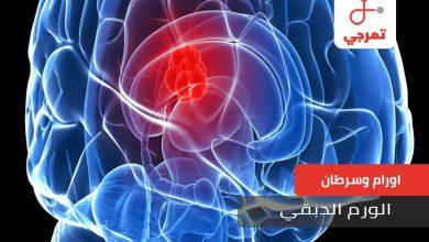 Photo of الورم الدبقي الأسباب الأعراض الأنواع وطرق العلاج