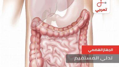 Photo of تدلي المستقيم الأسباب الأعراض العلاج ونصائح للوقاية