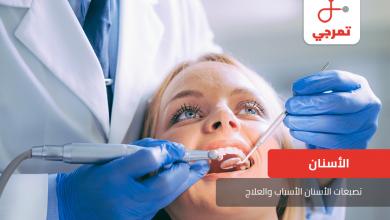 Photo of تصبغات الأسنان الأسباب والعلاج كل ما تريد معرفته