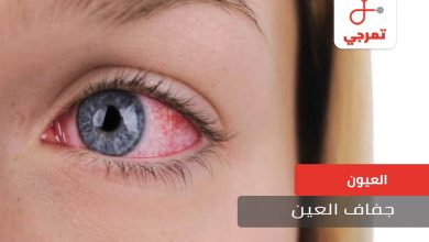 Photo of جفاف العين الأسباب الأعراض وطرق العلاج