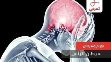Photo of سرطان الرأس الأسباب الأعراض التشخيص وطرق العلاج