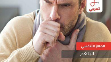 Photo of البلغم الأسباب الأعراض وطرق العلاج والوقاية
