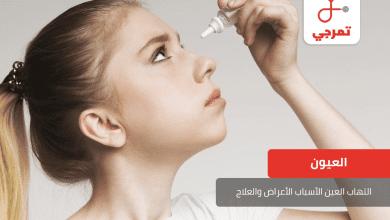 Photo of التهاب العين الأسباب الأعراض الأنواع وطرق العلاج