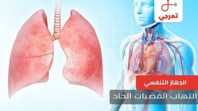 Photo of التهاب القصبات الحاد الأسباب الأعراض وطرق العلاج