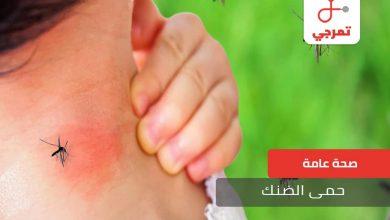 Photo of حمى الضنك ما هي الأسباب الأعراض وطرق الوقاية
