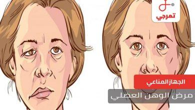 Photo of مرض الوهن العضلي الأسباب الأعراض وطرق العلاج