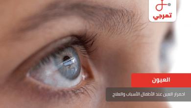 Photo of احمرار العين عند الأطفال الأسباب وطرق العلاج