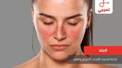 Photo of الذئبة الحمراء الأسباب الأعراض وطرق العلاج