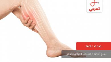 Photo of تشنج العضلات الأسباب الأعراض وطرق العلاج