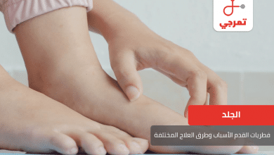 Photo of فطريات القدم الأسباب وطرق العلاج المختلفة