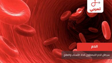 Photo of سرطان الدم الليمفاوي الحاد الأسباب الأعراض وطرق العلاج