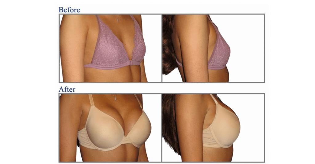 عمليات تكبير الثدي أهم 3 أنواع والتكلفة تمرجي
