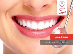 إزالة الجير من الأسنان