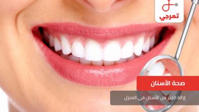 Photo of إزالة الجير من الأسنان في المنزل