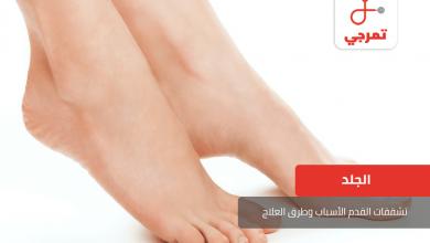Photo of تشققات القدم الأسباب وطرق العلاج